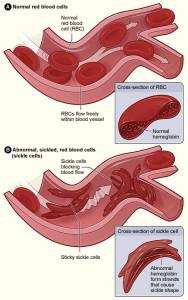 sicklecellanemia